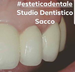 Implantologia Dentaria Salerno Dr. Francesco Sacco